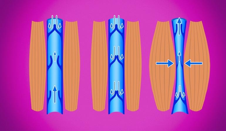 Иллюстрация здоровой вены, показывающая нормальную компрессию вены, которая поддерживает циркуляцию назад к сердцу