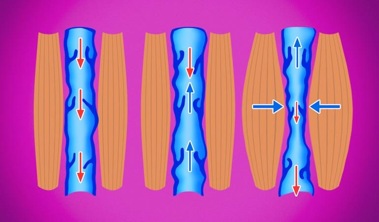 Иллюстрация венозной недостаточности, показывающая ненормальную компрессию вен и дальнейшую потерю эластичности, препятствующую циркуляции крови